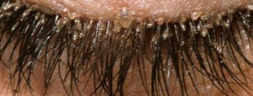 Aumentan casos de contagio de piojos en las pestañas