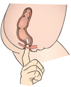 Using your dominant hand, slowly and gently insert the suppository, pointed tip first, into the rectum. Use your finger to bring it an inch inside the rectum. Hold it in place for a few seconds then remove yo ur finger. Ascertain that the suppository does not slip out.