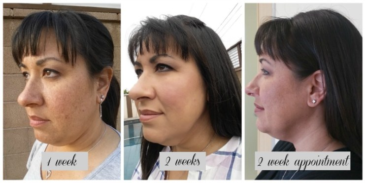 Kybella - My First Appointment with Cosmeticare