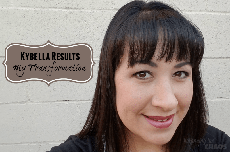 Kybella Results My Final Results and Transformation
