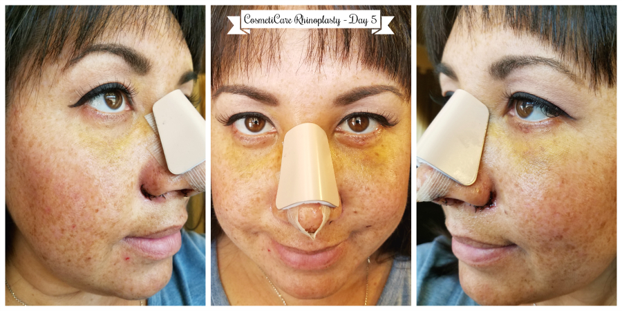 CosmetiCare Rhinoplasty Day 5