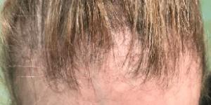 Successful treatment found for Frontal Fibrosing Alopecia ...