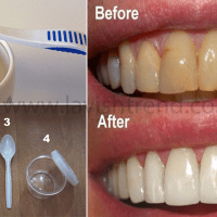 Remove Dental Plaques in just 5 Minutes! Check out this Natural Method!