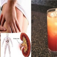 Natural Remedies of Kidney Stones in just a week