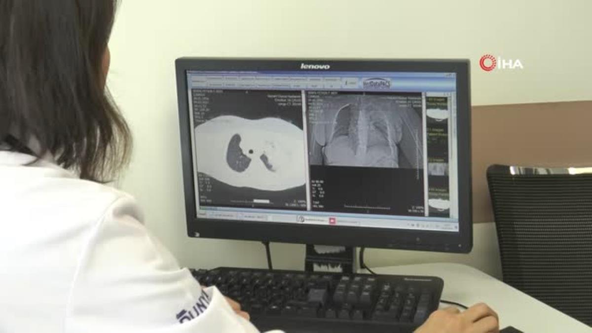 Hava değişiklikleri akciğer hastalarının atak geçirmesine sebep olabilir