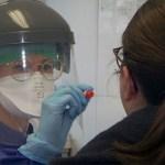 Srpska nabavlja 25.000 testova na virus korona