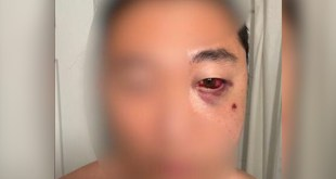 Asian American Sucker Punched In Central Park