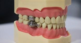 dental slim