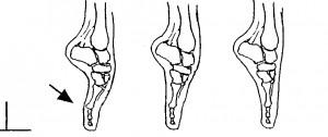 This illustration shows correct bone placement en pointe.