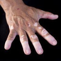 Įdomioji medicina: baltmė ir jos simptomai