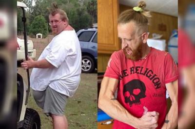 Американский фермер похудел на 150 кг. Жёсткая диета и две операции