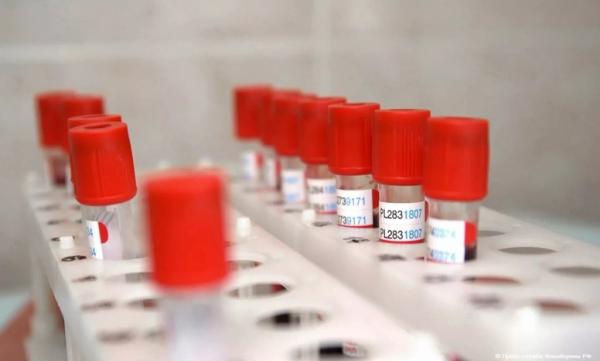 Мировое научное сообщество признало российскую вакцину от коронавируса, заявили в Центре Гамалеи