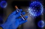 Мифы и реальность: 22 распространенных вопроса о коронавирусе