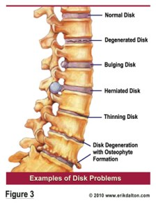vertebrae-disk-problems