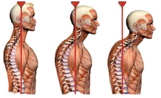 Forward Head Posture – A Pain in the Neck – Part 1