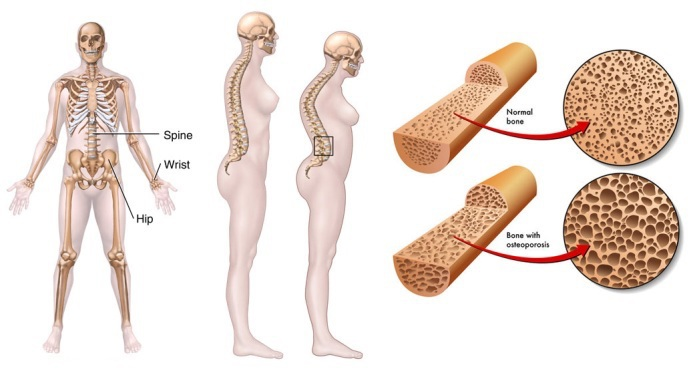 Do you have osteoporosis or know someone who does? This article explores six facts about osteoporosis (that you might not already know).