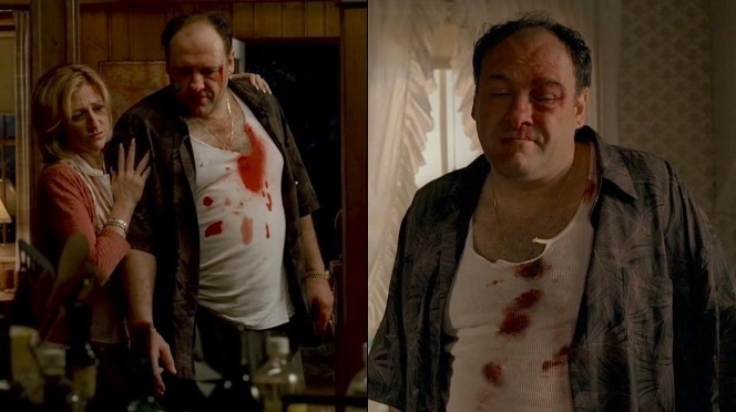 Note that the degree of damage to Tony's undershirt changed overnight with the location and severity of the bloodstains and tears migrating.