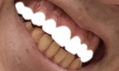 tooth9