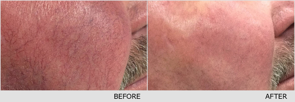 Facial Redness (Rosacea) Red Birthmarks Spider and Leg ...