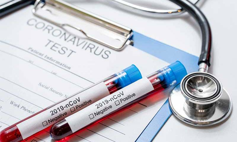 Vital Brazil e UFRJ testam soro para tratar covid-19