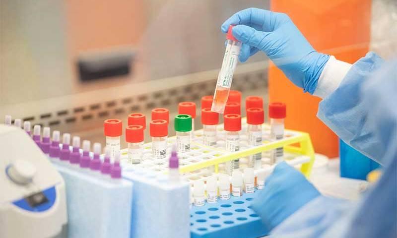 Universidade de Brasília e HUB iniciam teste de vacina contra covid-19