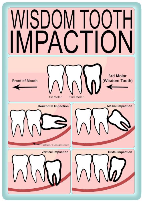Food Stuck In Wisdom Tooth : stuck, wisdom, tooth, Removal, Impacted, Wisdom, Teeth, British, Association, Maxillofacial, Surgeons