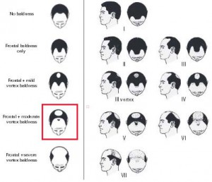 Early Baldness at Middle Age May Be Linked to Prostate