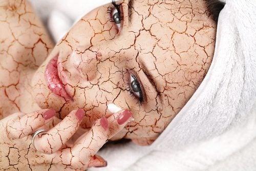 كيفية تقليل جفاف بشرة الوجه