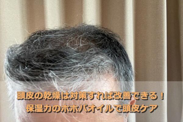 頭皮の乾燥は対策すれば改善できる!保湿力のホホバオイルで頭皮ケア