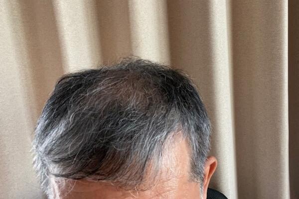 M字ハゲでも目立ちにくい髪型!前髪を短めにオーダーすべき理由は?