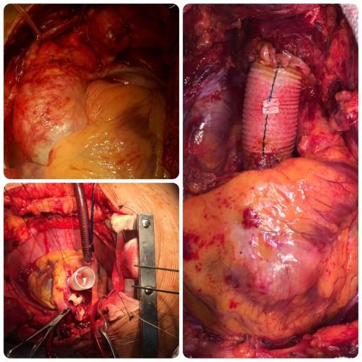 Collage aorta