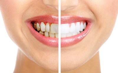 Acrescente vida aos seus dentes 0 (0)
