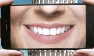 Plano odontológico que cobre próteses da Amil a partir de 92,00/mês 4.5 (8)