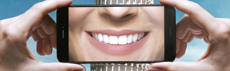 Plano odontológico que cobre próteses da Amil a partir de 115,00/mês 4.6 (9)