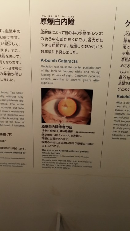 Instantaneous Cataracts