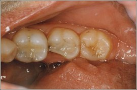 Picture of broken tooth before same day procedure using CAD/CAM technology   available at Barlow Smisek Dentistry in Stratford, Ontario