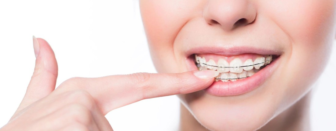 reasons for orthodontic treatments