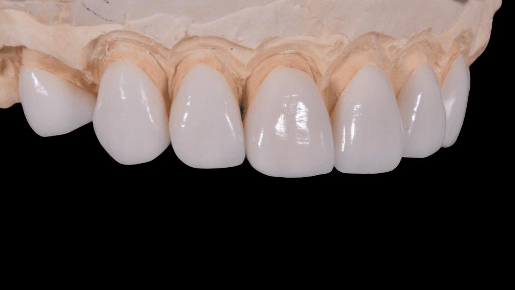 3D printed teeth benefits