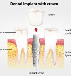 dental crown diagram [ 1170 x 835 Pixel ]