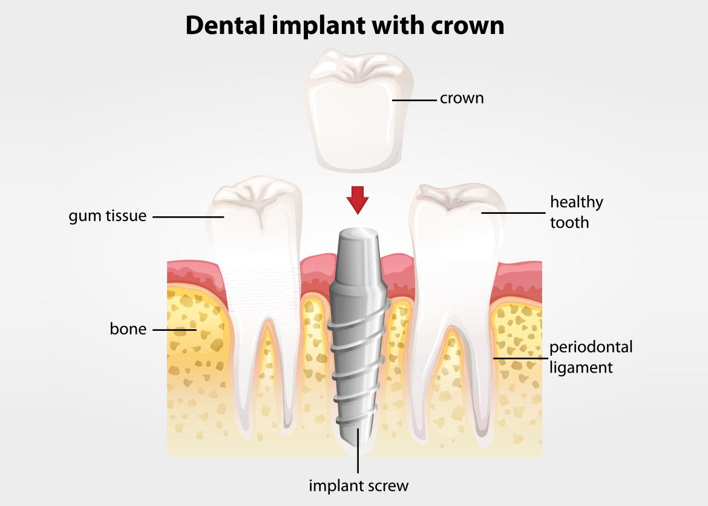 hight resolution of dental crown diagram
