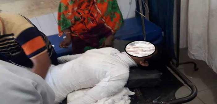 অগ্নিদগ্ধ মাদ্রাসাছাত্রীর অস্ত্রোপচার হয়েছে