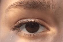 وصفات للعناية بمنطقة حول العين