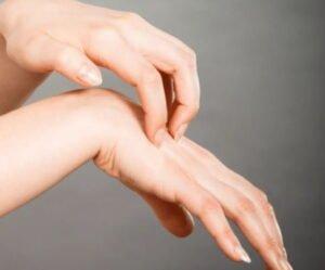 علاج حساسية اليدين والحكة