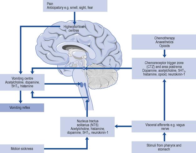 Nausea and vomiting | Basicmedical Key