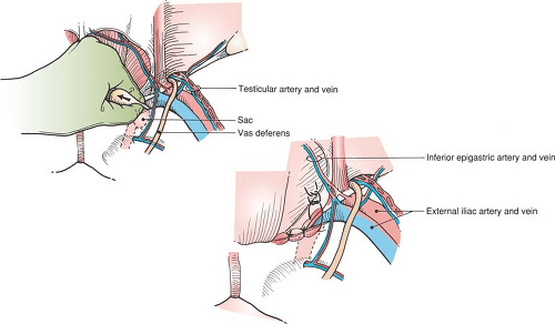Repair of Inguinal and Femoral Hernias   Basicmedical Key