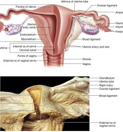 a diagram shows left side of uterus and upper portion of the vagina and the left uterine tube and ovary in a frontal section  [ 1086 x 820 Pixel ]
