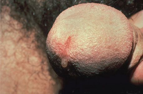 Chlamydia thrush