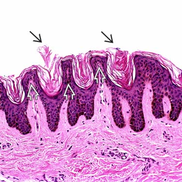 Epidermal Nevus Basicmedical Key