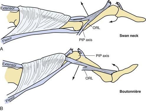 extensor tendon repair