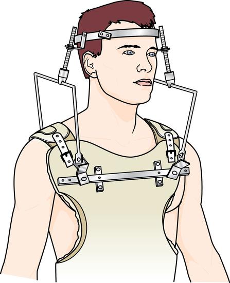 Musculoskeletal system | Basicmedical Key